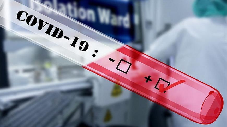 Вирусолог рассказал о необычном свойстве COVID-19